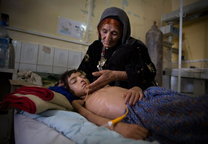 MALNUTRITION BOOST HOSPITAL AFGHANISTAN 2014
